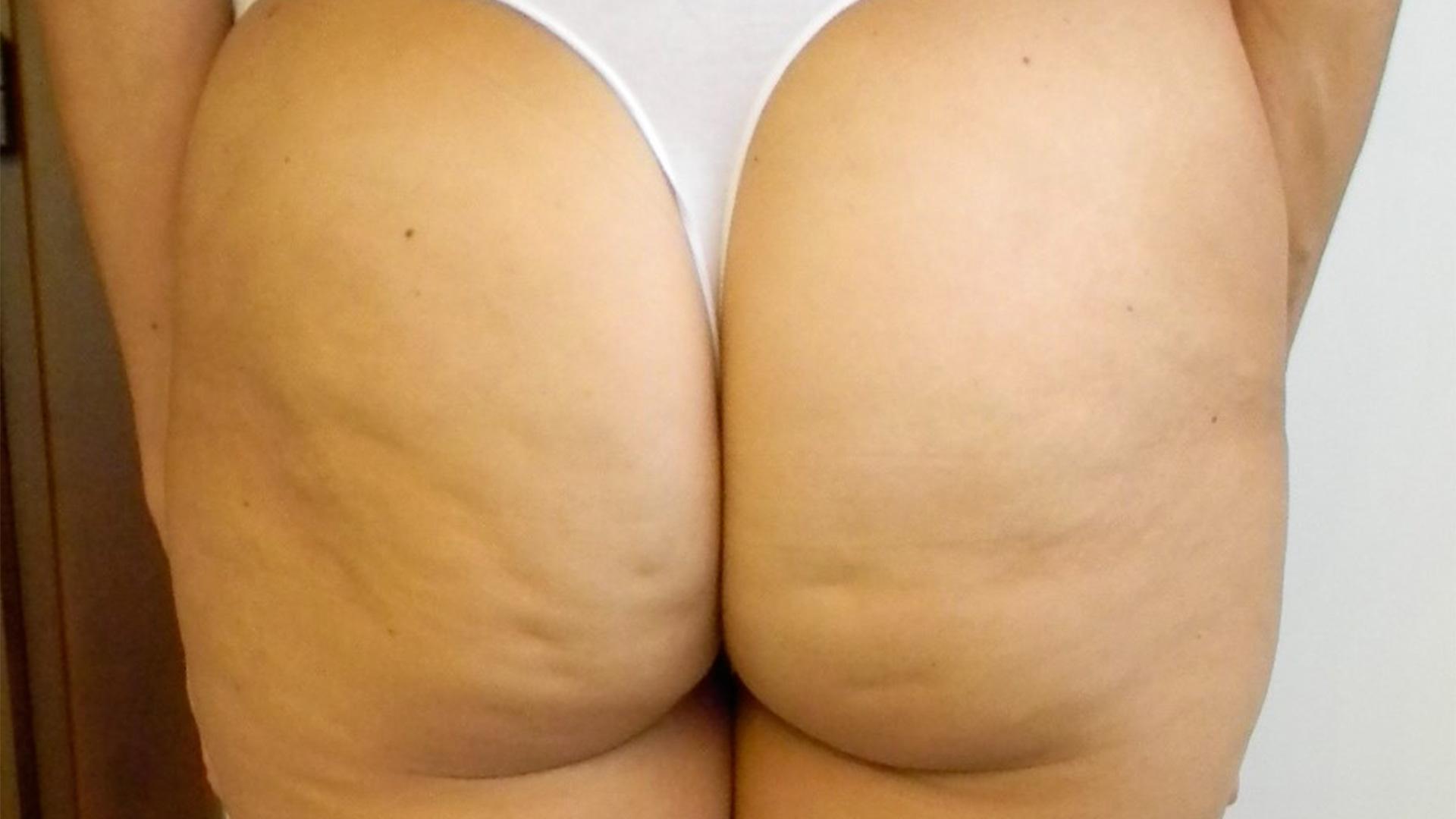 La cellulite adipeuse