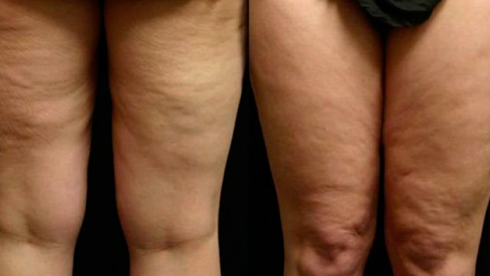 La cellulite fibreuse
