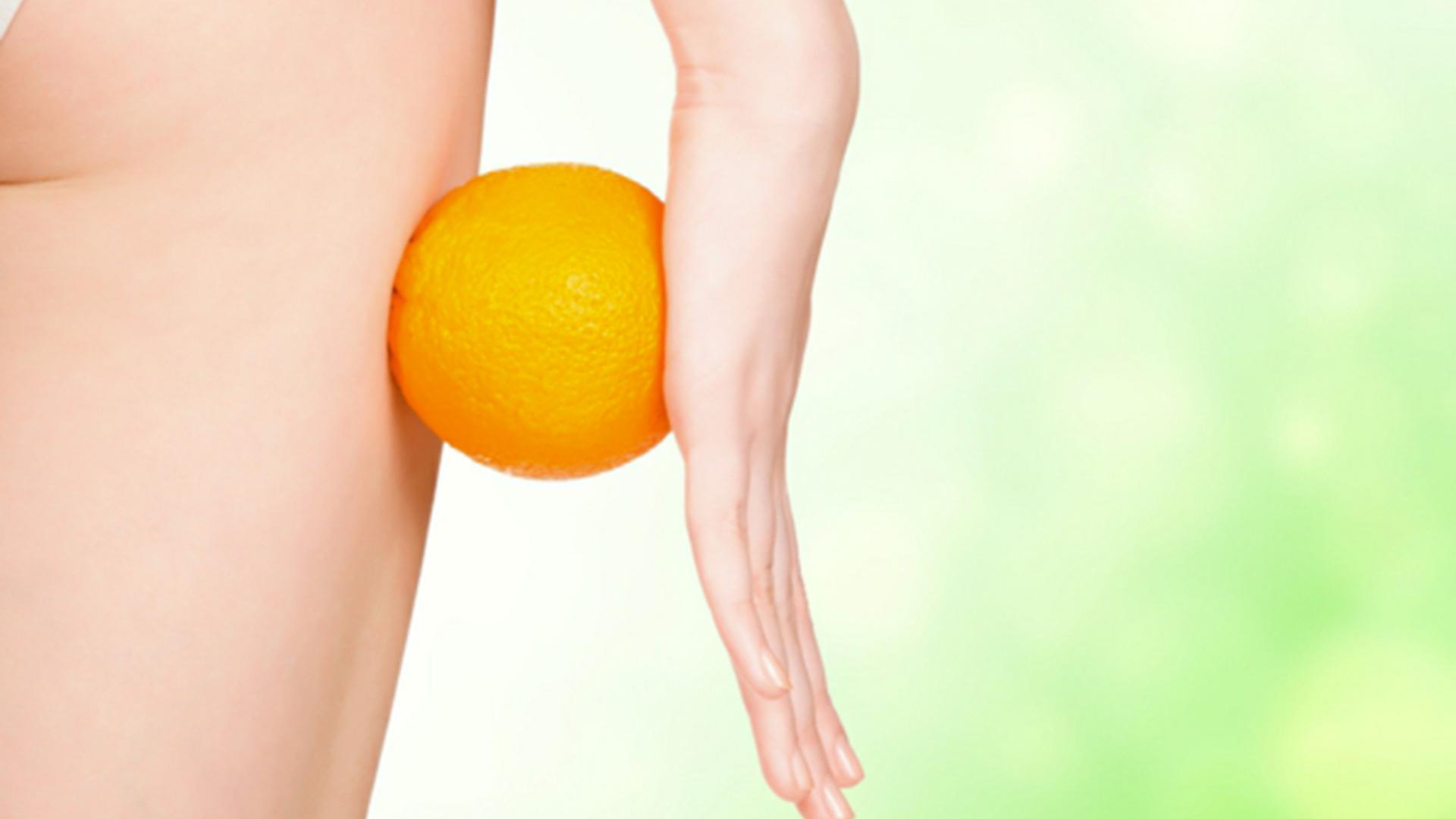 Cellulite : pourquoi moi ?