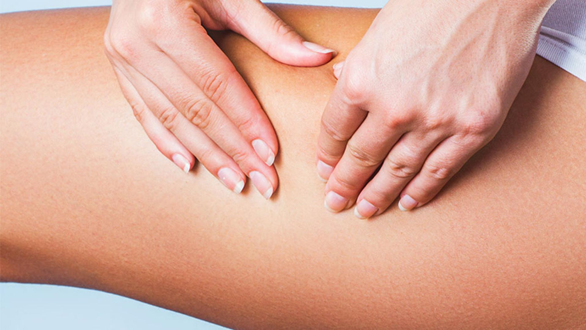 Comment se débarrasser de sa cellulite ?